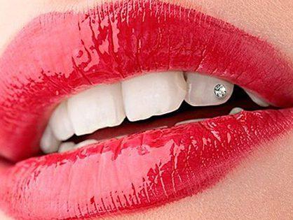 Зубные пломбы - вчера и сегодня