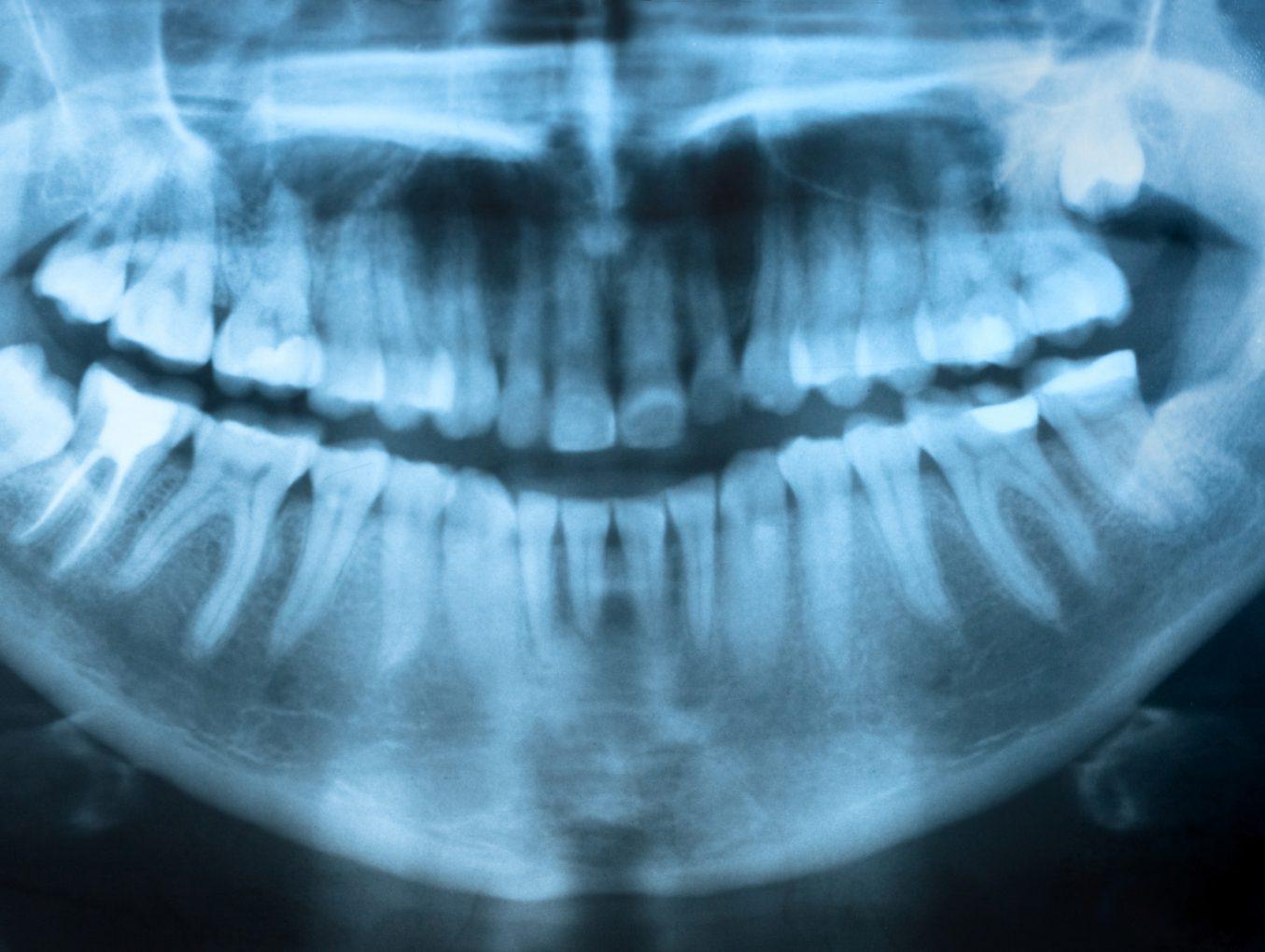 Эндотия - лечение корневых каналов зуба