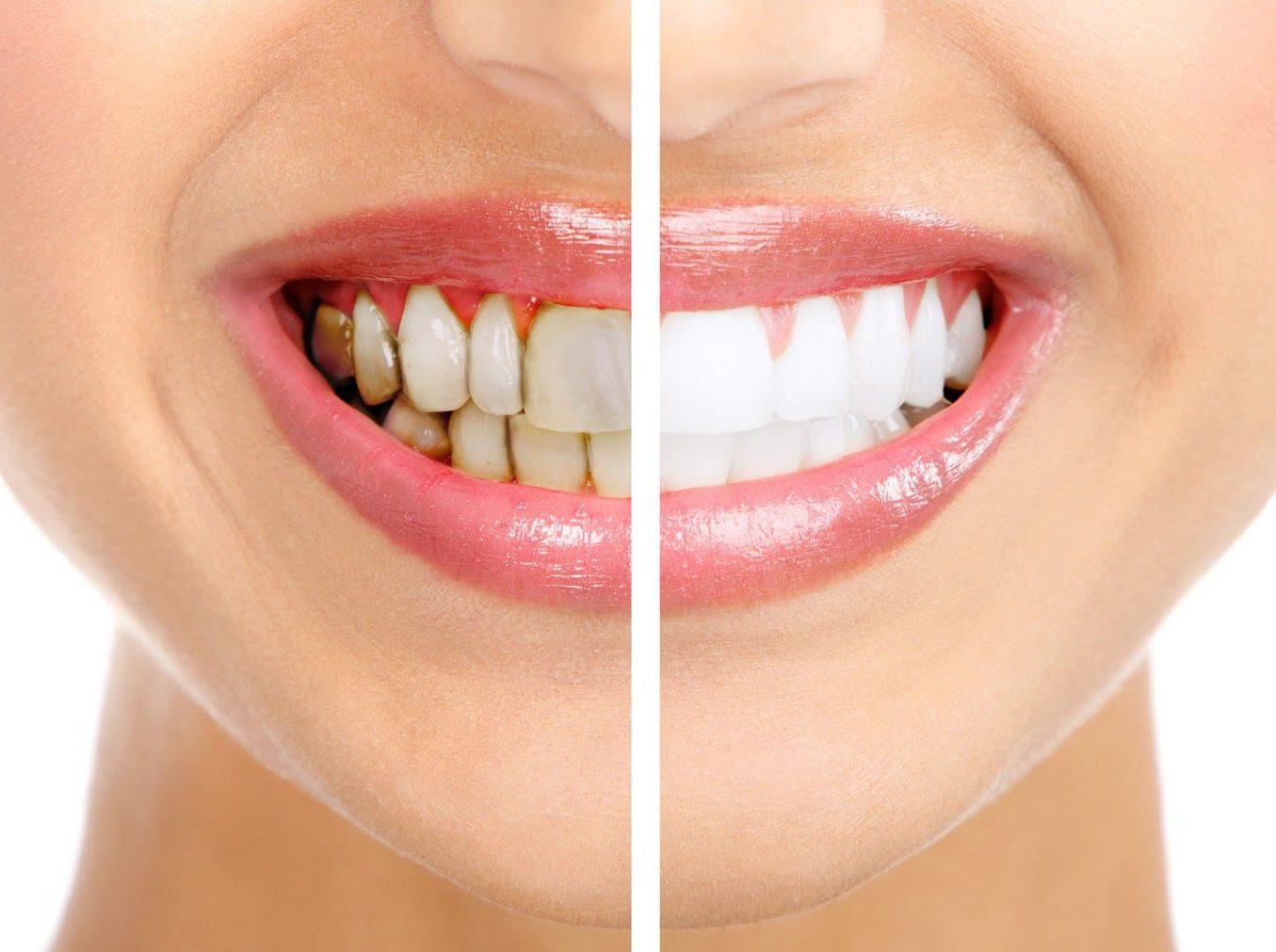 Удаление зубного налета и зубного камня
